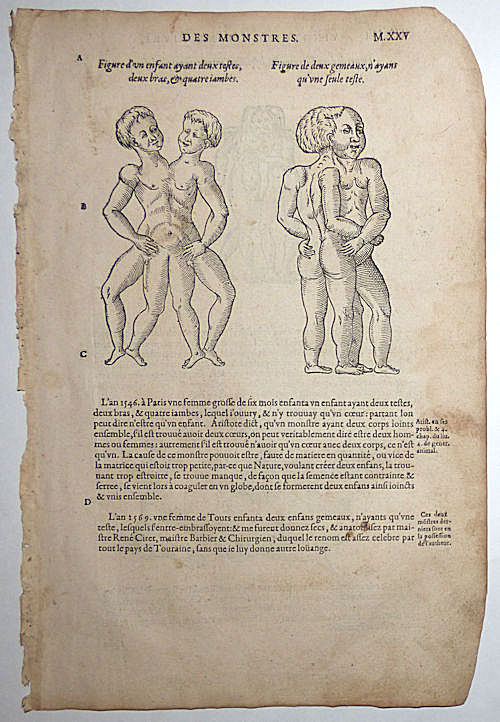 16th-century leaf with four illustrations of conjoined twins from Ambroise Paré's Monsters. Ambroise Paré.