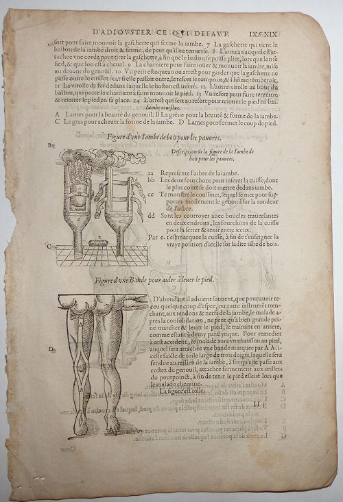 16th-century leaf with four illustrations of wooden peg-leg for poor men, a foot-support strap, and stilt-crutch from Ambroise Paré's Prosthetics. Ambroise Paré.