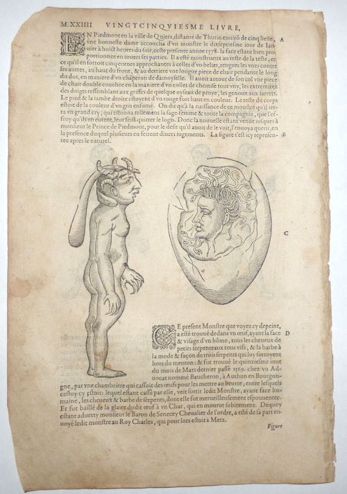 16th-century leaf with four illustrations of conjoined twins and birth defects from Ambroise Paré's Monsters. Ambroise Paré.