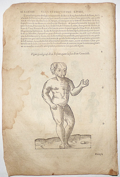 16th-century leaf with four illustrations showing deformities caused by excessive imagination or unpleasant sights from Ambroise Paré's Monsters. Ambroise Paré.
