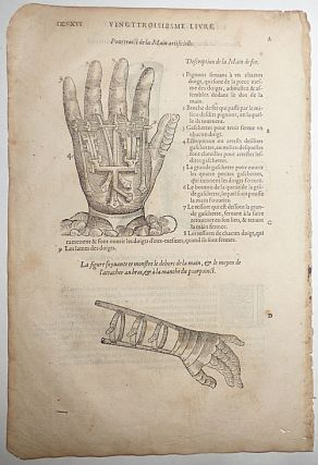 16th-century leaf with the famous illustration of Ambroise Paré's Artificial Hand. Ambroise...