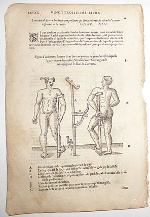 16th-century leaf with four illustrations of wooden peg-leg for poor men, a foot-support strap, and stilt-crutch from Ambroise Paré's Prosthetics