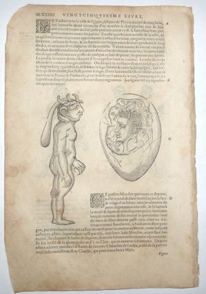 16th century leaf with four illustrations of conjoined twins and birth defects from Ambroise Paré's Monsters