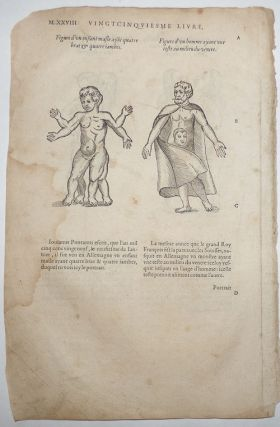 16th-century leaf with four illustrations of conjoined twins and birth defects from Ambroise Paré's Monsters.