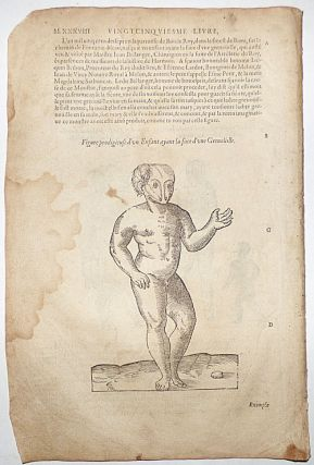 16th-century leaf with four illustrations showing deformities caused by excessive imagination or...